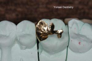 모형을 이용해서 금으로 인레이를 제작한 모습입니다.