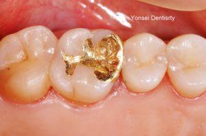 제작된 인레이를 치아에 접착하여 치료를 완료했습니다