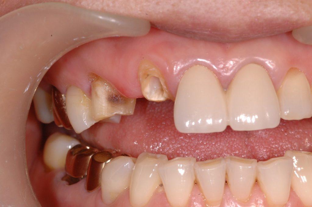 환자분 께서 다음과 같이 치아가 부러진 상태로 내원하였습니다.