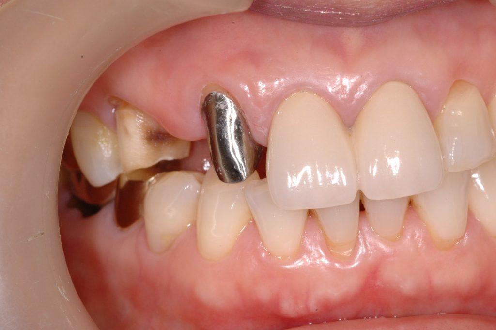 치아의 뿌리에 주조기둥을 만들어 치아를 수복한 예 입니다.