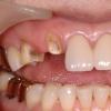 부러진 치아의 복구